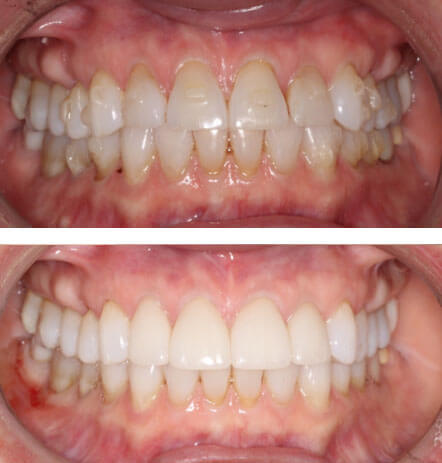 Case 1 before and after cosmetic dentistry at Montana Dental Works