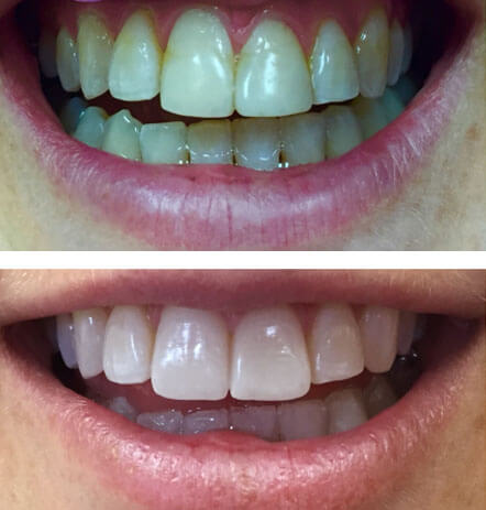 Case 2 before and after cosmetic dentistry at Montana Dental Works