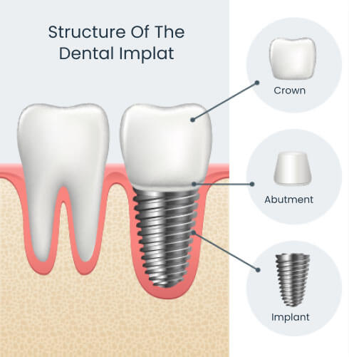 Structure of a dental implant showing the implant in the jaw with abutment and crown attached
