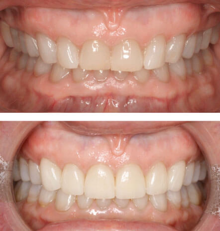 Case 3 before and after cosmetic dentistry at Montana Dental Works